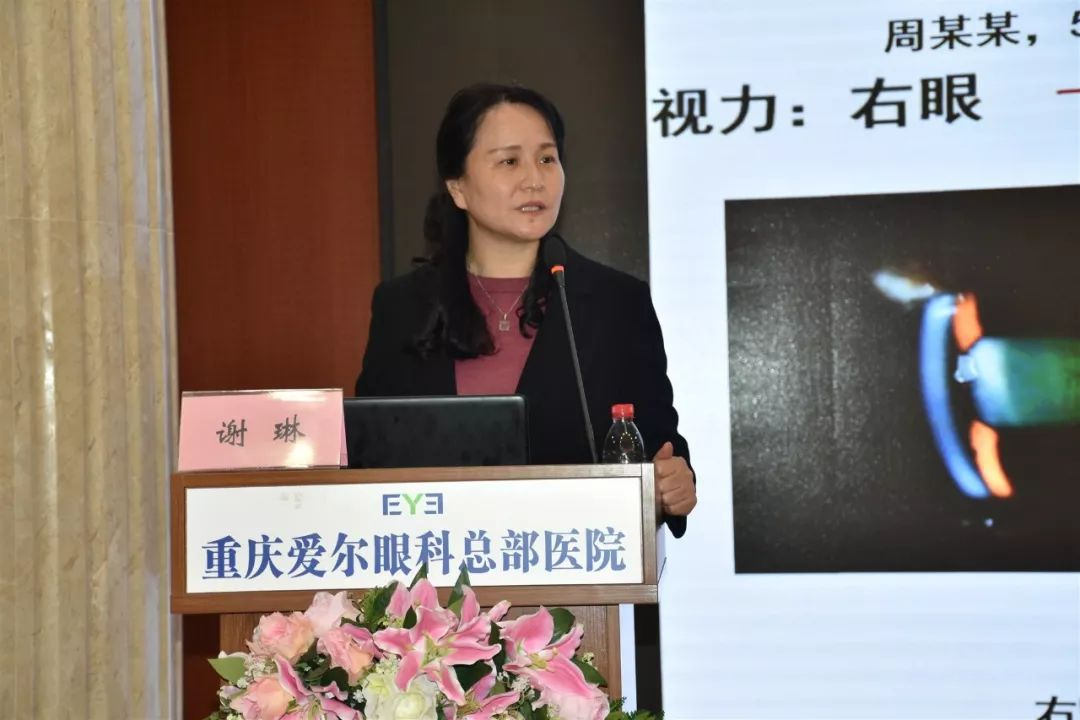 谢琳(重庆医科大学附属三院)演讲《中青年闭角型青光眼临床特征解析》